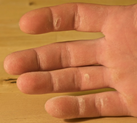 Climbing has taken a toll on my hands